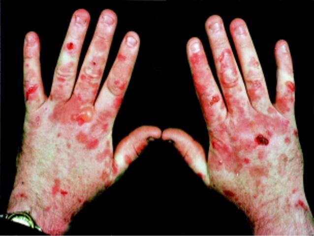 Топ самых необычных болезней